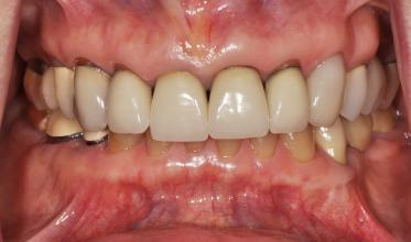 Before: Worn, unesthetic crowns and worn lower teeth