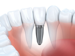 Kelowna Dental Implants